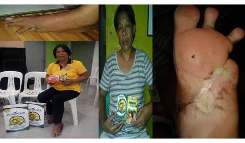 C24 Saved DIABETIC Patient